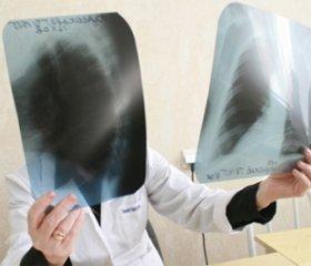 Прогнозирование сердечно-сосудистых осложнений при профессиональных заболеваниях легких