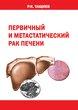 Первичный и метастатический рак печени