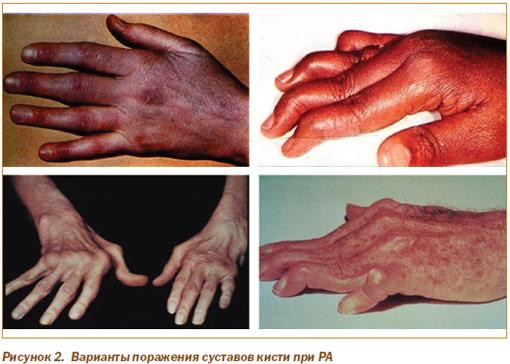 артрит плюснефалангового сустава лечение Артрит суставов стопы – причины, симптомы и лечение