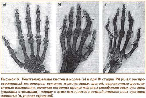 Ревматоидный артрит: диагностика, клиника, лечение | Интернет ...