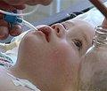 Токсикозы у детей