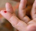Несахарный диабет: эпидемиология, диагностика, клиническая симптоматика, лечение