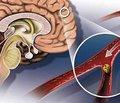 Субарахноидальное кровоизлияние (клиника, этиология, диагностика, лечение)