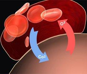 Острые нарушения кровообращения