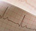 Современные подходы к лечению постинфарктных больных