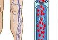 Майстер-клас «Ризик-менеджмент венозного тромбоемболізму в ортопедії: практичні рішення для клінічної роботи»