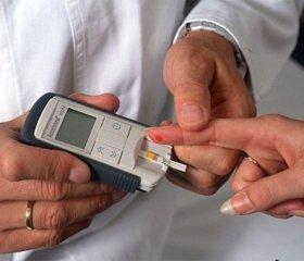 Цукровий діабет: діагностичні критерії, етіологія і патогенез