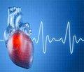 Неотложная помощь при остром коронарном синдроме/инфаркте миокарда