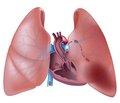 Тромбоэмболия легочной артерии: подходы к диагностике и лечению в 2015 г.