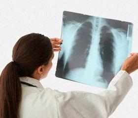 Легенева гіпертензія в дітей, хворих на бронхолегеневу дисплазію