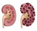 Аутосомно-домінантний полікістоз нирок та рекомендації із застосування толваптану (згідно із затвердженими позиціями Робочої групи зі спадкових захворювань нирок ERA-EDTA і European Renal Best Practice)