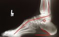 Фахова школа для ортопедів-травматологів: «Ортопедична корекція розладів ходьби у пацієнтів із хворобою Шарко — Марі — Туста інші актуальні питання ортопедії та травматології»