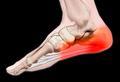 Фахова школа для ортопедів-травматологів: «П'яткова шпора» – міф чи реальність? «Сучасне лікування остеоартрозу» та інші актуальні питання травматології та ортопедії.